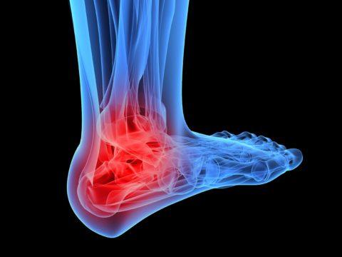 Повреждение голеностопного сустава — частая травма у людей трудоспособного возраста