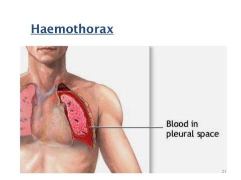 При гемотораксе также делают пункцию и откачивают из плевры кровь.