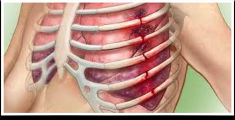 При осложненном переломе фрагметами кости травмируются мягкие ткани и возникают различные осложнения.