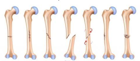 При остеосинтезе линия разлома является важным фактором