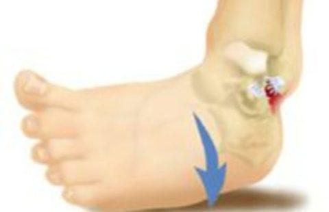 При открытом переломе происходит разрыв кожных покровов