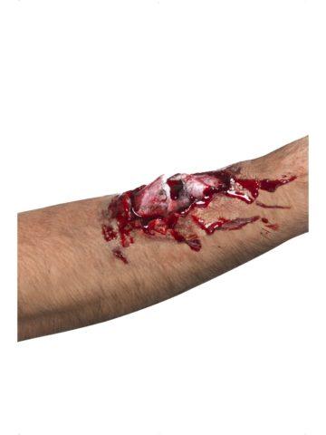 При открытом переломе всегда присутствует кровотечение