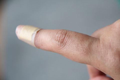 При переломе палец опухает