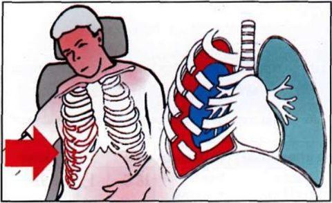 При переломе ребер при неправильной транспортировке осколки костей могут нарушить целостность близлежащих тканей и жизненно важных органов.