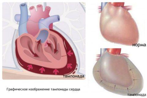 При проведении тампонады сердца может возникнуть перикардит.