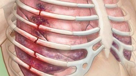 При сильных травмах ребер часто возникают множественные переломы костей