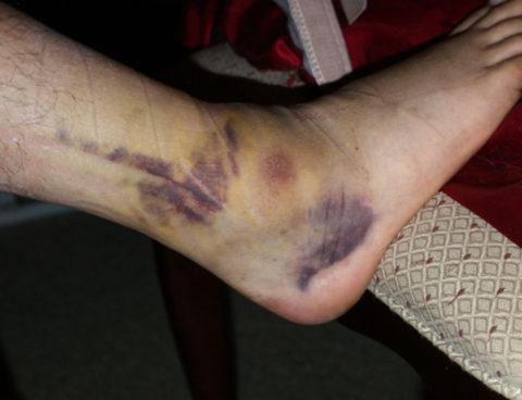При супинационном переломе гематома видна по наружной поверхности сустава