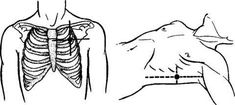При травматическом пневмотораксе проводят пункцию.