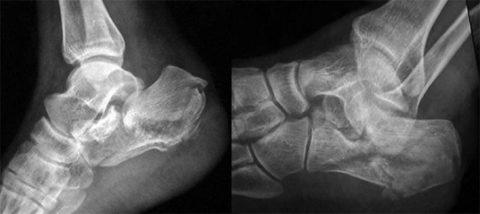 Пяточная кость переломана внутри сустава с отрывом бугристости