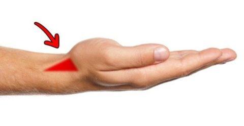 Расположение анатомической табакерки