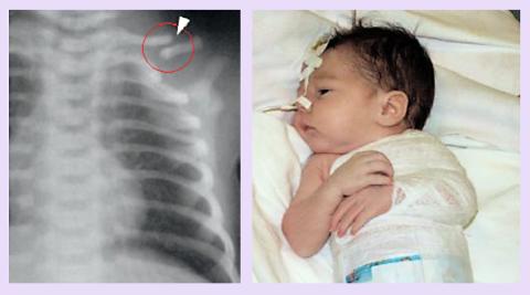 Рентген перелома ключицы и фиксирующая «косыночная» повязка у новорождённого