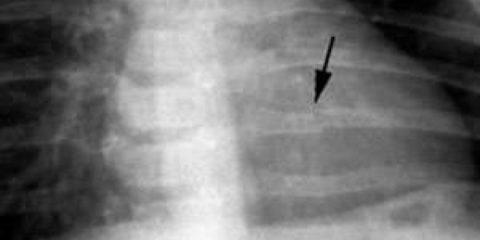 Рентген помогает определить характер повреждений ребер.