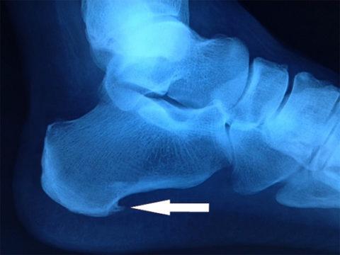 Рентгенограмма пяточной шпоры