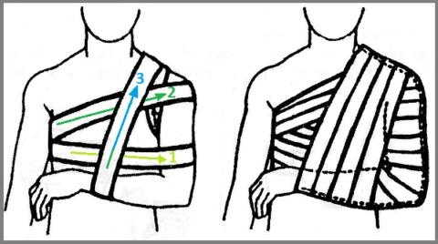 Схема фиксации руки бинтами, придуманная французским хирургом D. J. Desault