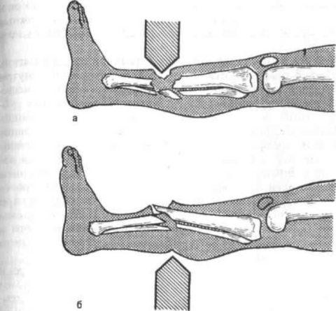 Схема возникновения первичных и вторичных открытых переломов ноги
