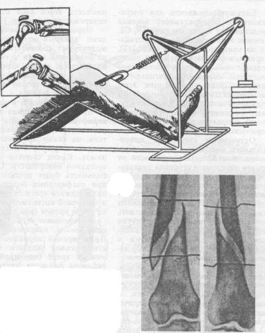 Скелетное вытяжение при переломе бедра подразумевает подвешивание к одному из отломков груза