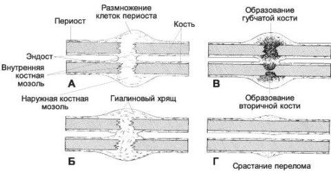 Срастание перелома происходит в несколько этапов.