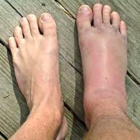 Так выглядит травмированная стопа по сравнению со здоровой