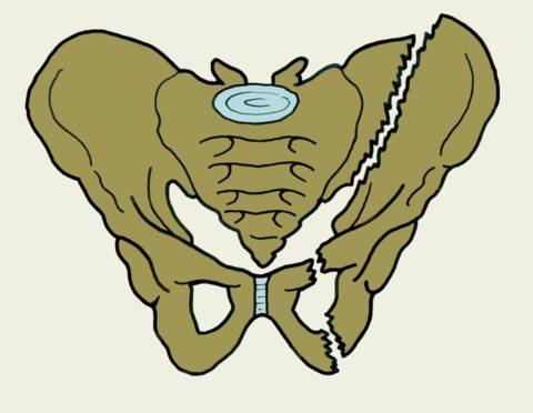 Тазового кольца