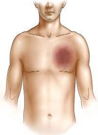 В месте повреждения образуется гематома