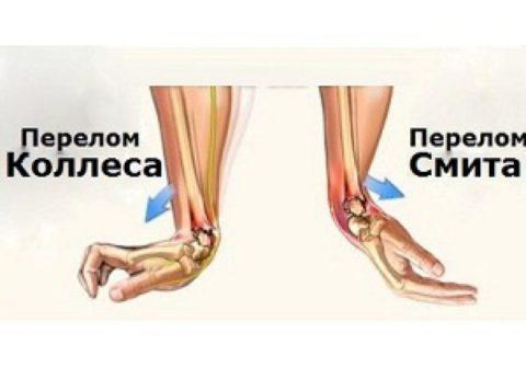 В зависимости от типа перелома рука принимает определенное положение