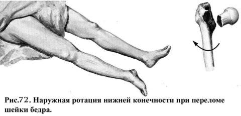 Характерный вид нижней конечности при переломе шейки бедренной кости.