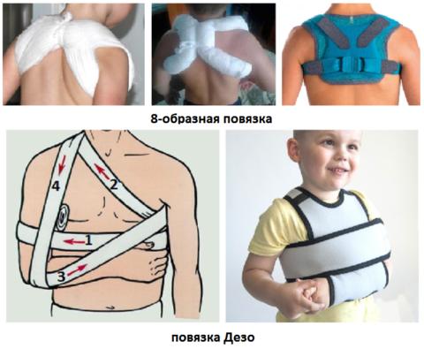 Виды повязок при переломах ключицы у детей