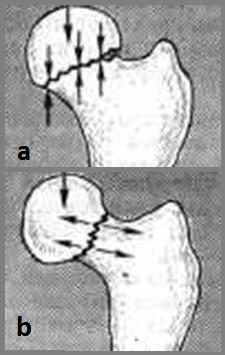 Вколоченные вальгусные переломы