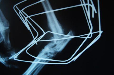 Внеочаговый остеосинтез применяют для фиксирования отломков кости при переломах ребер.