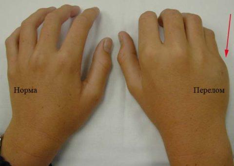Внешний вид с травмой и здоровой руки