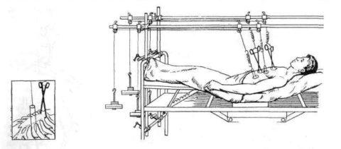 Вытяжение за грудину