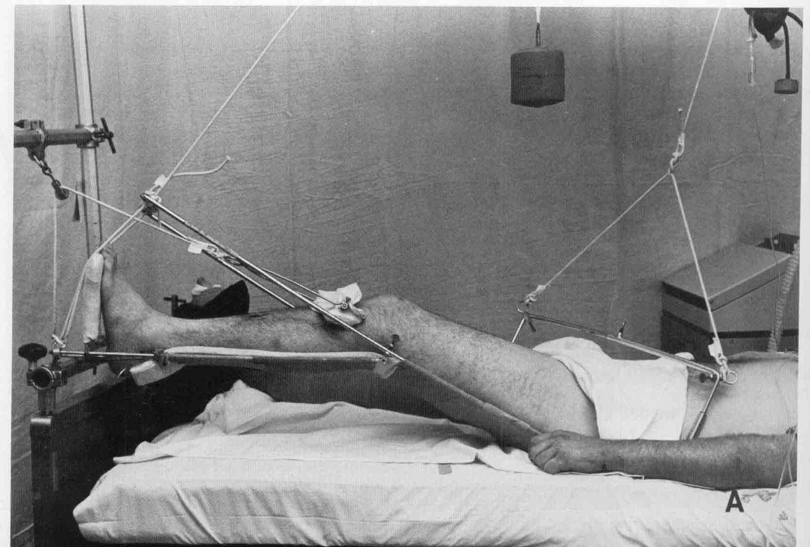 При переломе таза применяется скелетное вытяжение