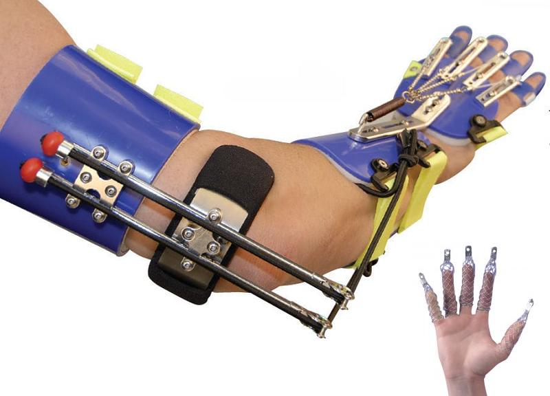 Ортез на запястье и вытягивающие шины для пальцев рук