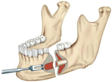 Биопластмасса может заменить титановые пластины.