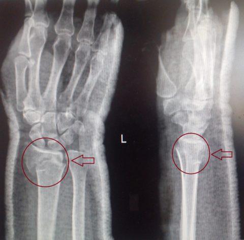 Диагноз перелома подтверждается рентгенологически