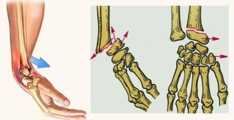 Этот вид перелома описан в 1841 году ирландским хирургом R. W. Smith