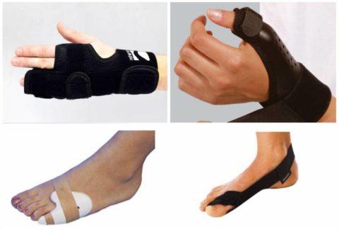 Фиксирующие ортезы для пальцев