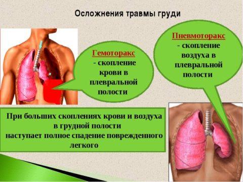Гемоторакс и пневмоторакс – грозные последствия травм грудной клетки.