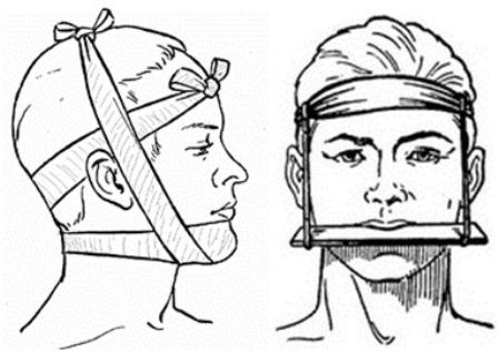 Иммобилизация нижней и верхней челюсти