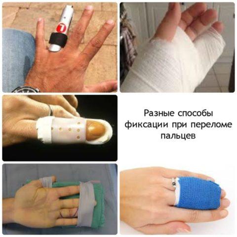 Иммобилизация пальцев при переломе