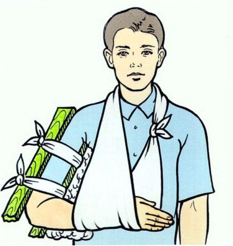 Иммобилизация при переломе плечевой кости