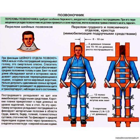 Инструкция по иммобилизации пострадавшего