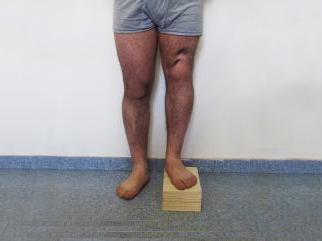 Изменение анатомического размера