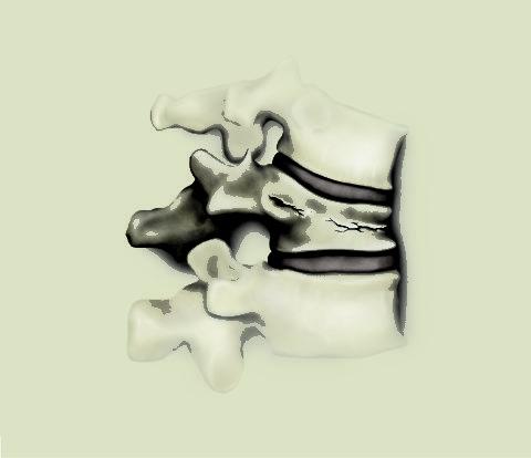 Компрессионным переломам чаще всего подвергается позвоночник
