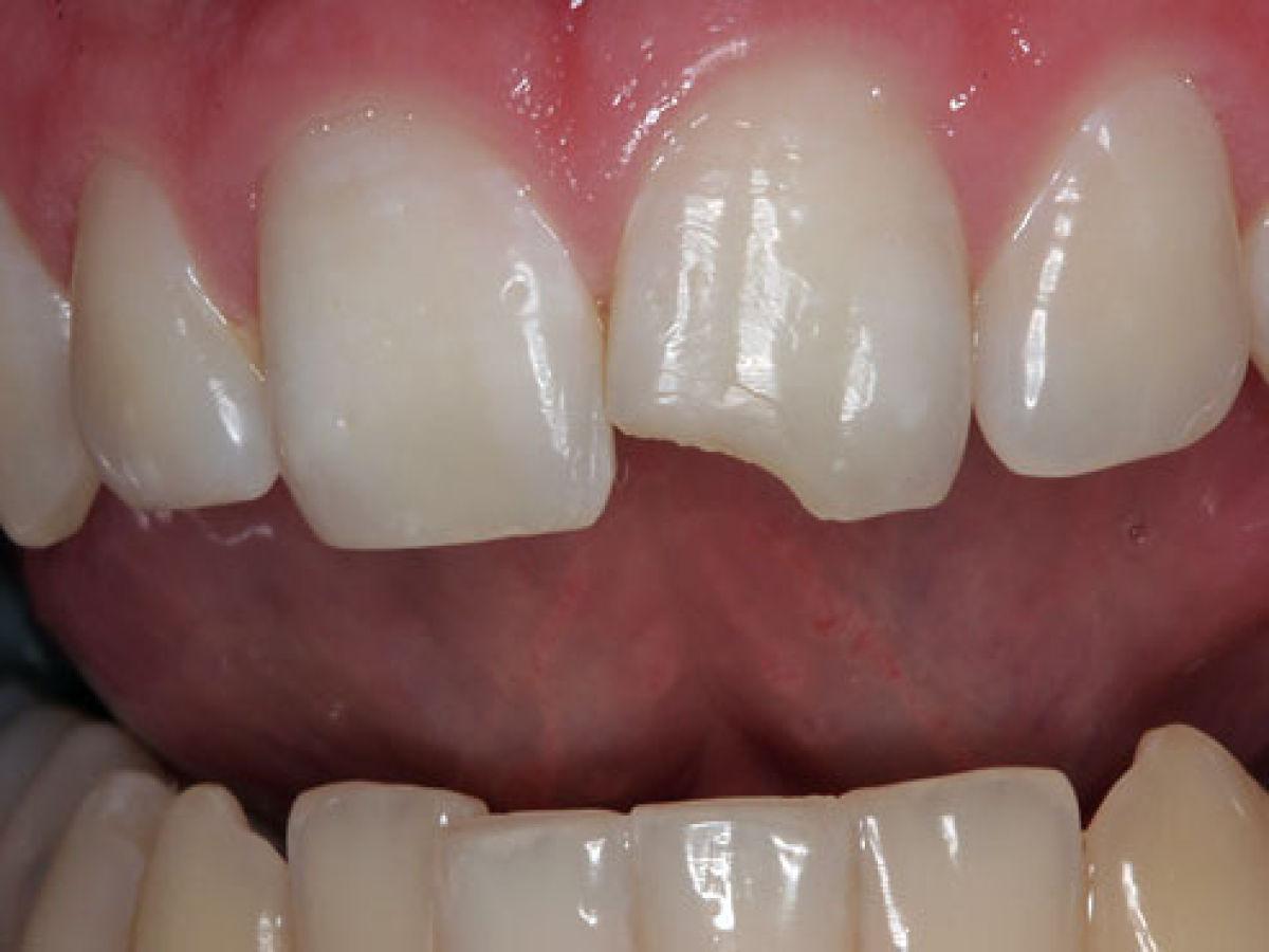 К чему снится отколотые передние зубы