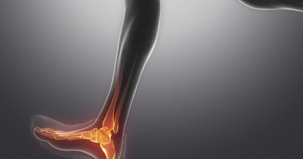 От целостности лодыжек зависит подвижность голеностопного сустава.