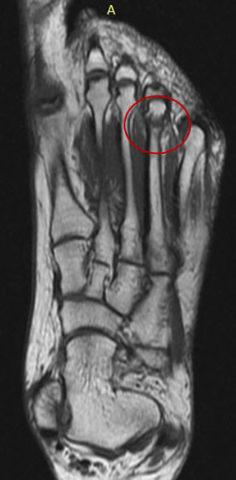 МРТ-диагностика маршевого перелома более точна, чем рентгенография.