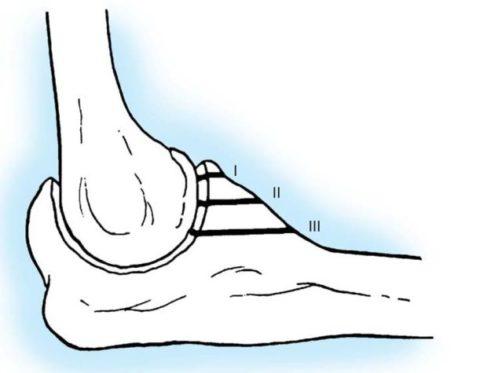 На эскизе дана схема травмы венечного отростка трех типов