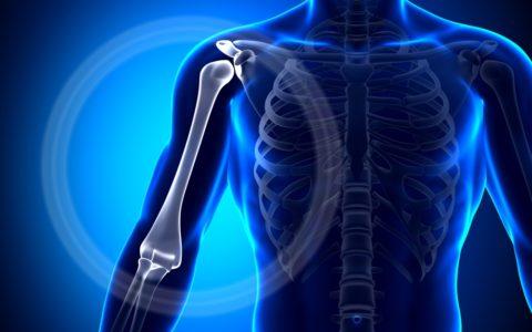 На фото перелом бугорка костей плеча.