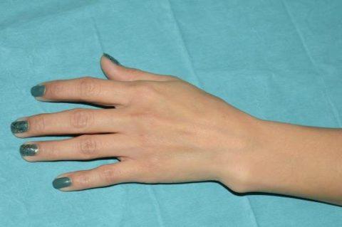 На фото перелом левого предплечья лучевой кости
